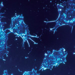 Can We Improve Cancer Treatment With the Tiniest of Nanoparticles?