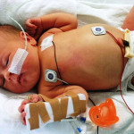 Research Seeks to Improve Outcomes Against Deadly Infantile Disease