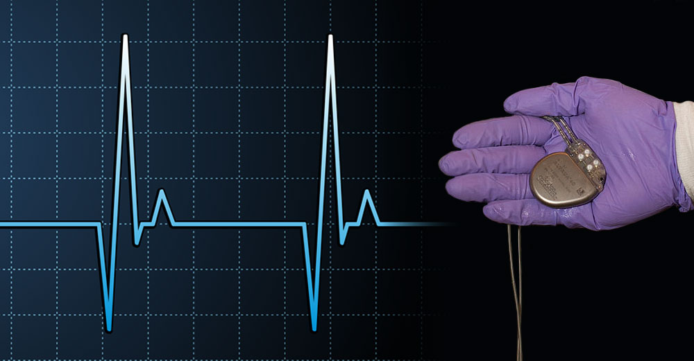 A goved hand holds a pacemarker over a heart beat chart.